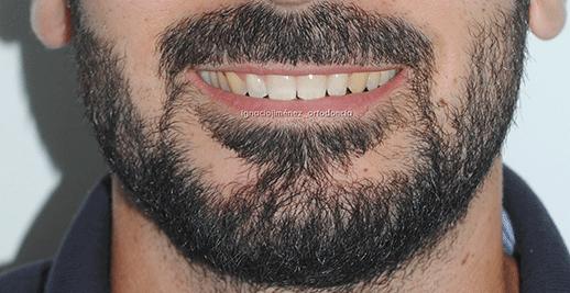 sonrisa-finalm