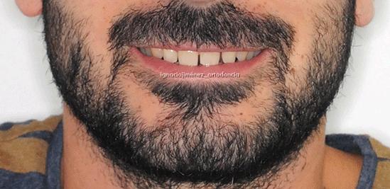 sonrisa-iniciam